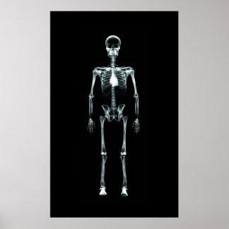 Affischen - röntga original för visionsingelskelet