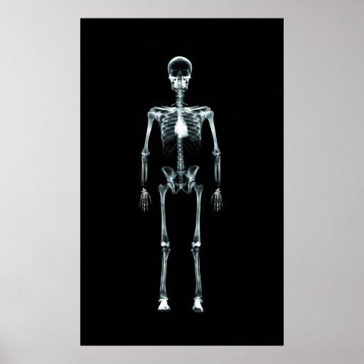 Affischen - röntga original för visionsingelskelet posters