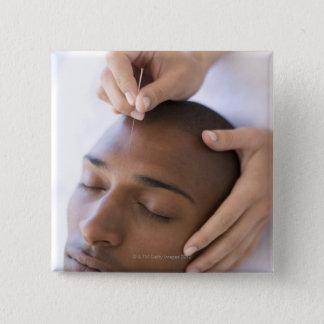 Akupunktur. Acupuncturist som sätter in en nål
