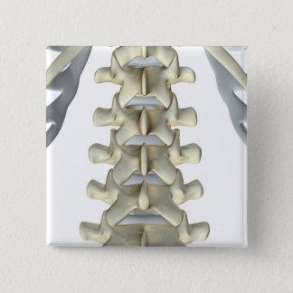 Ben av Lumbarkotor Standard Kanpp Fyrkantig 5.1 Cm