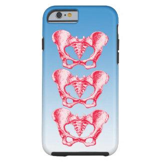 Ben av människabäckenet tough iPhone 6 case