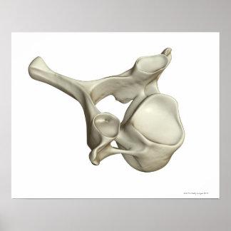 Cervical kota poster