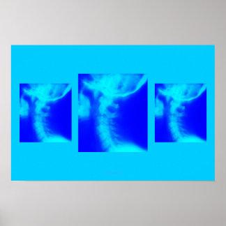 Chiropracticaffisch: SidoCervical deppighet Poster