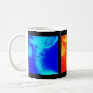 Chiropractickaffekopp, travel mug och Steins Kaffemugg