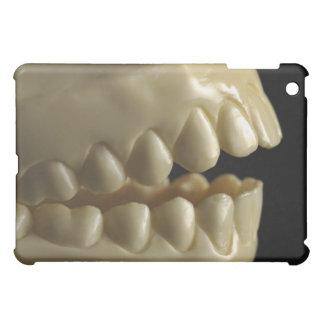 Ett tand- modellerar iPad mini skydd