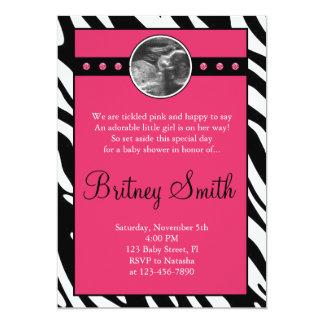 För Sonogramfoto för sebra rosa inbjudan för baby