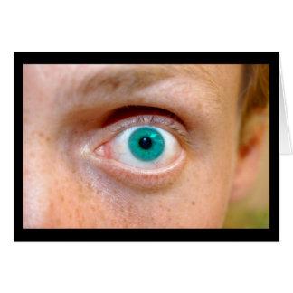 Gregs öga hälsningskort
