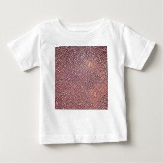 Människaspleen med kronisk myelogenous leukemia tee shirt