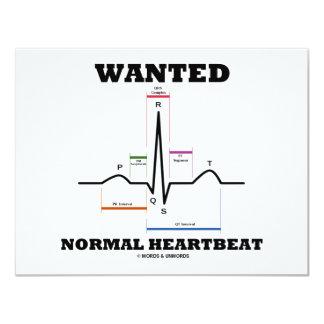 Önskat det normalahjärtslag (electrocardiogramen) 10,8 x 14 cm inbjudningskort