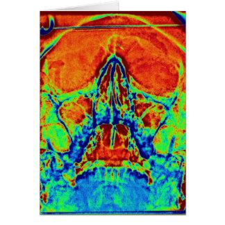 psychedelic skalle hälsningskort