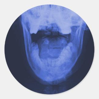 Röntgade 3 - Elektromagnetiska blått Runt Klistermärke