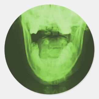 Röntgade 3 - Radioaktiv grönt Runt Klistermärke