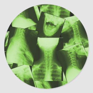 Röntgat - radioaktiv grönt runt klistermärke