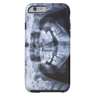 Röntgenstråle av en flickajawline som tas med ett tough iPhone 6 case