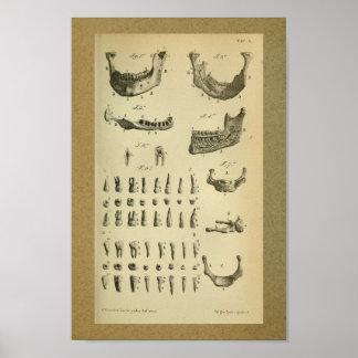 Tänder 1850 för käke för vintageanatomitryck poster