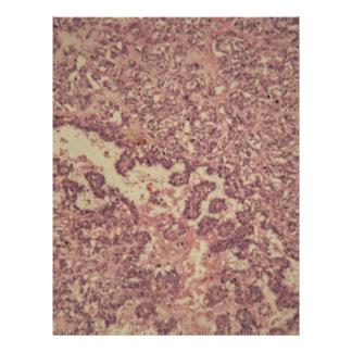 Thyroidkörtelceller med cancer brevhuvud