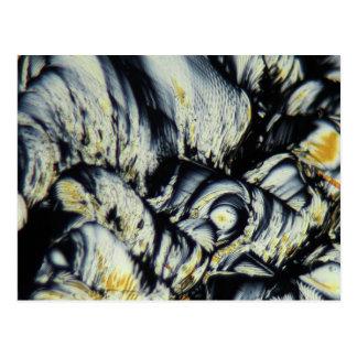 Vätskekristaller under ett mikroskop vykort