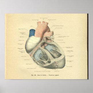 VintageFrohse anatomi av människahjärta Poster